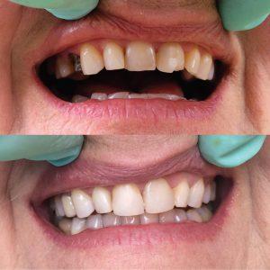 Caso odontológico 1 antes y después Bogotá