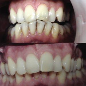Caso odontológico 10 antes y después Bogotá
