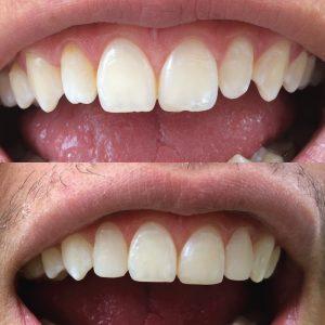 Caso odontológico 11 antes y después Bogotá