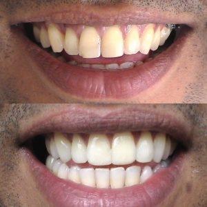 Caso odontológico 12 antes y después Bogotá
