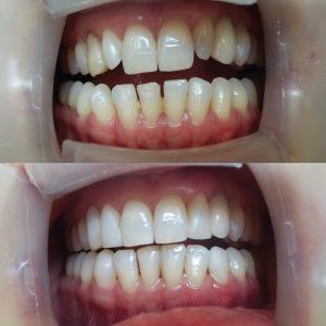 Caso odontológico 13 antes y después Bogotá