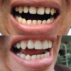 Caso odontológico 14 antes y después Bogotá