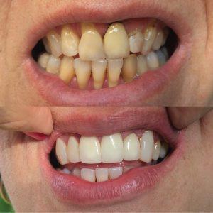 Caso odontológico 2 antes y después Bogotá
