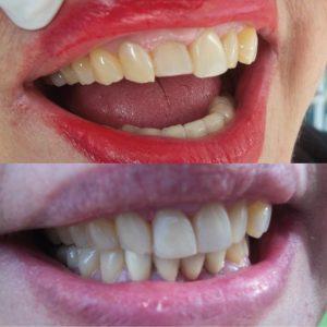 Caso odontológico 3 antes y después Bogotá
