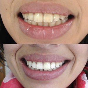 Caso odontológico 4 antes y después Bogotá