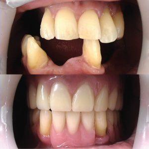 Caso odontológico 5 antes y después Bogotá