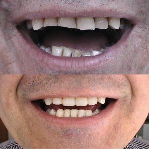 Caso odontológico 6 antes y después Bogotá