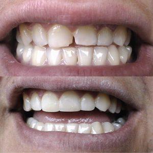 Caso odontológico 7 antes y después Bogotá
