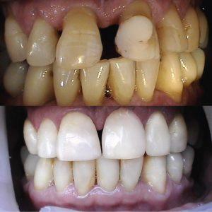 Caso odontológico 8 antes y después Bogotá