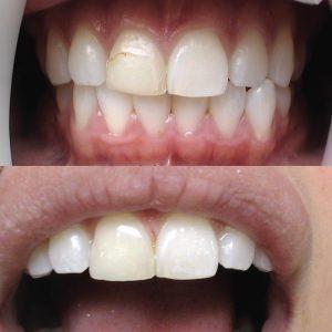 Caso odontológico 9 antes y después Bogotá