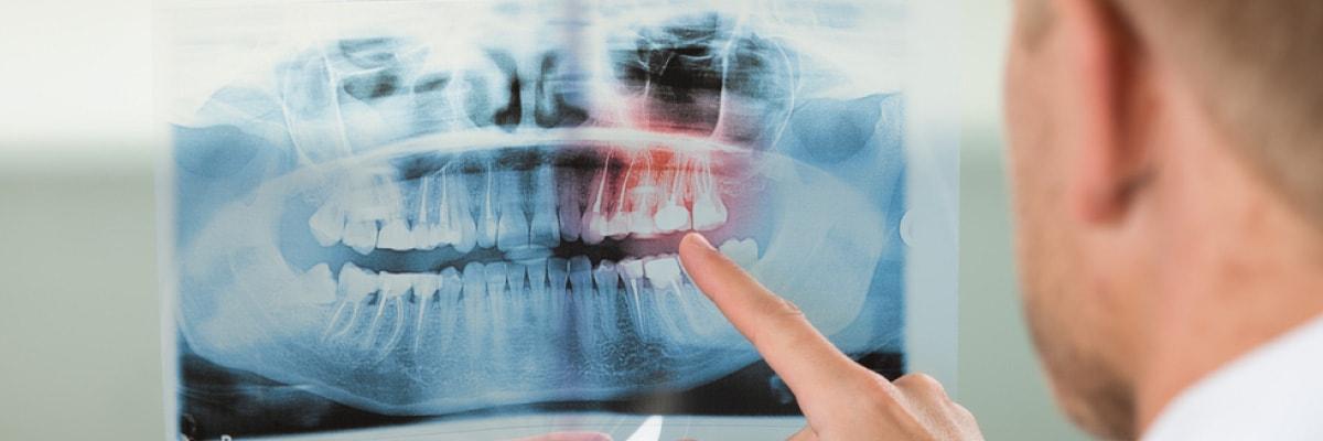 Endodoncia y manejo del dolor. Odontología sin dolor Bogotá.
