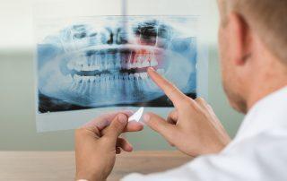 Endodoncia y odontología sin dolor Bogotá
